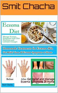 Eczema Diet Homemade Treatment for Eczema Skin Treat and Manage Eczema Symptoms: Get Relief and Manage Eczema Symptoms at Home